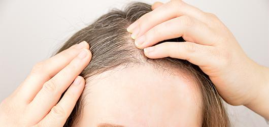 徐々に増えていく白髪は生活習慣の乱れと関係が……原因と対策方法