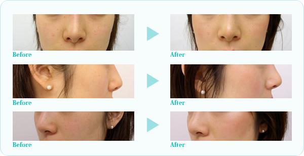 隆鼻プロテーゼ症例写真4