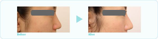 隆鼻プロテーゼ症例写真1