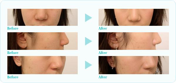 隆鼻プロテーゼ症例写真5