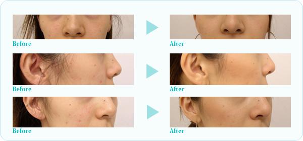 隆鼻プロテーゼ症例写真3