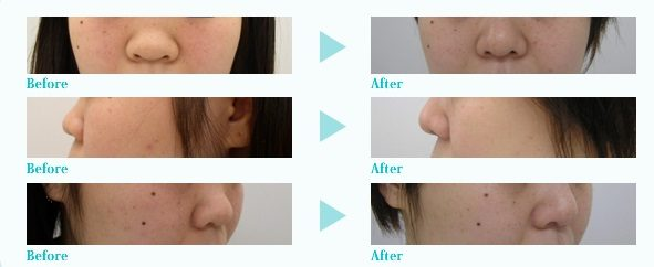 隆鼻(プロテーゼ)+鼻尖軟骨形成術
