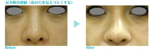 耳介軟骨移植症例写真(鼻の穴)