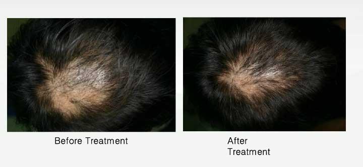 頭皮全体の改善